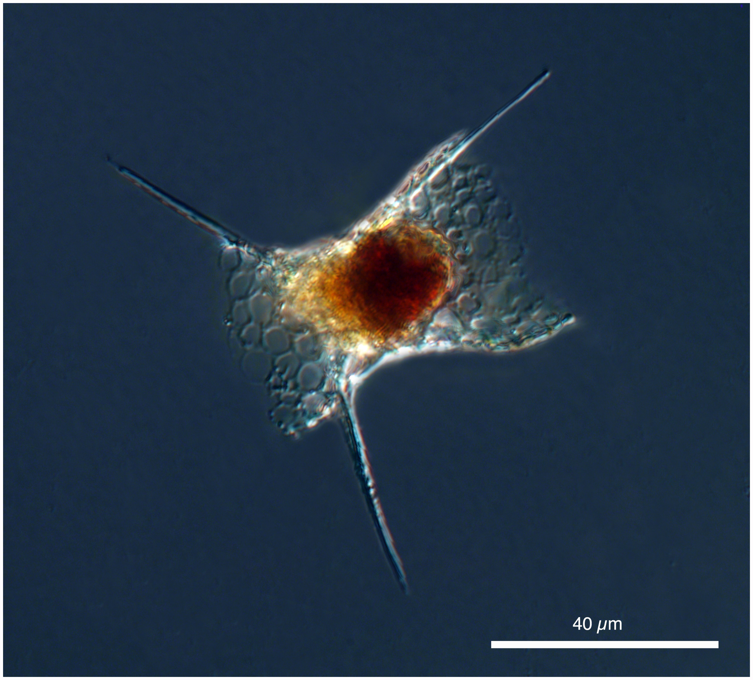 radiolarian Permomelissa or Dimelissa thoracites (Haeckel). [Lophophaenidae] Formerly known as Lithomelissa thoracites