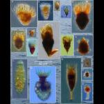 Diversity of Planktonic Ciliates in the Bay of Villefranche