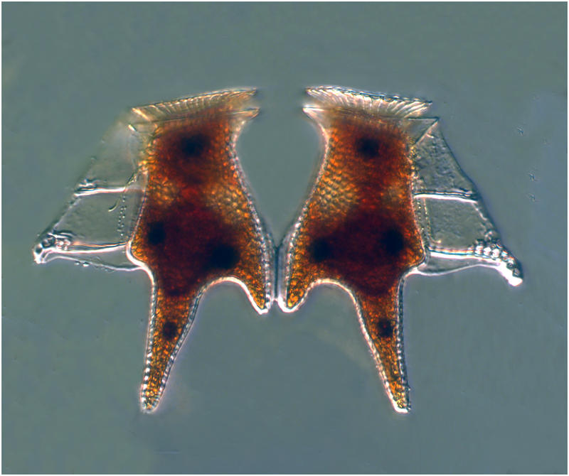 Dinophysis toe to toe