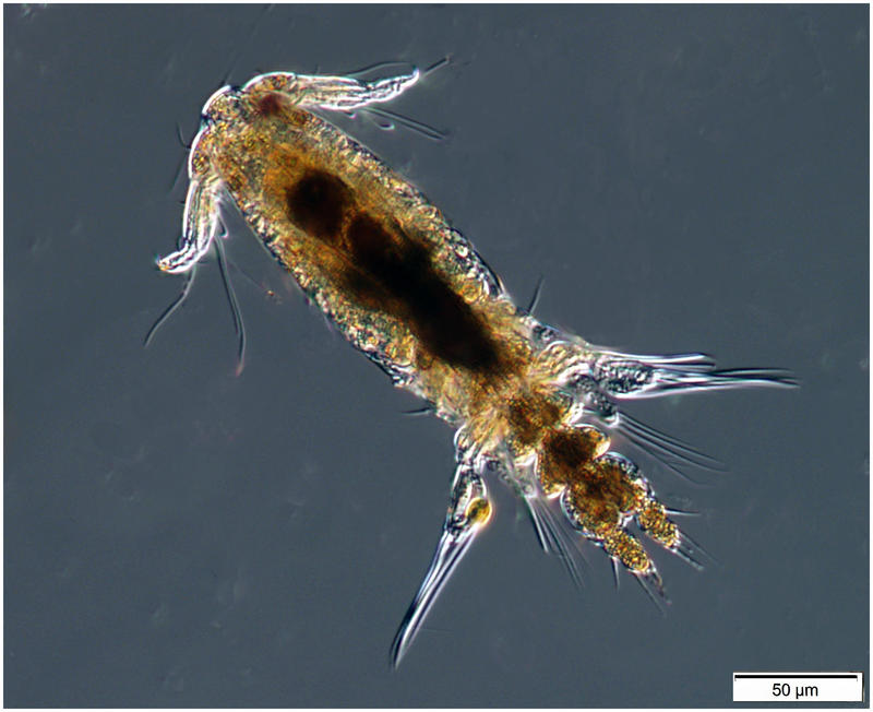 Copepod from Sample 2