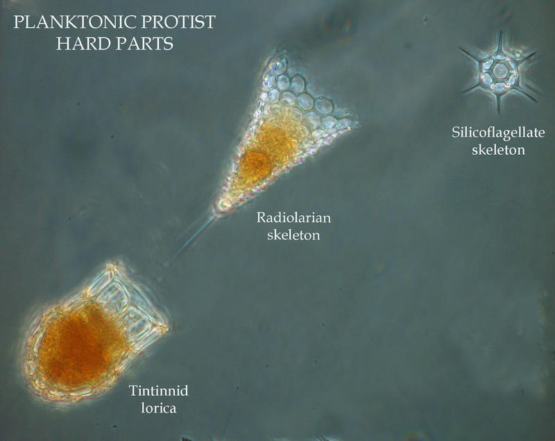 Some plankton protists have hard parts, shells or skeletons.
