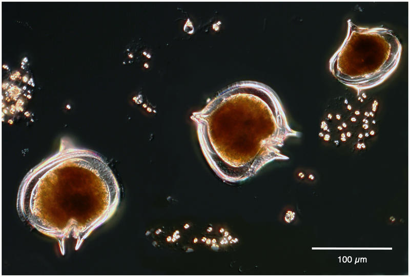 Protoperidinium Antarcticum from the Amundsen Sea