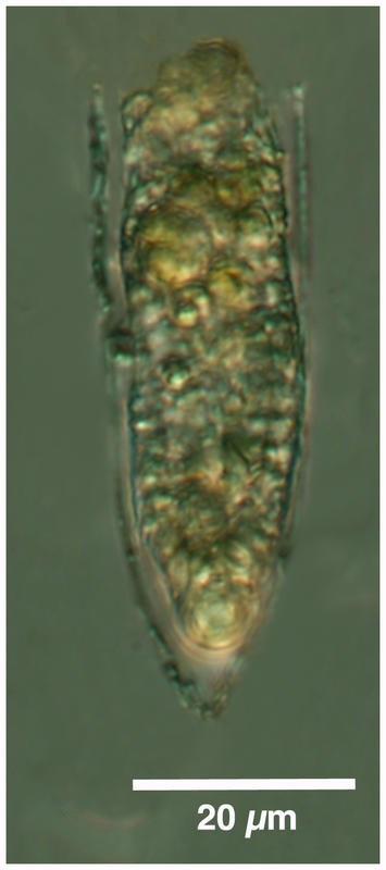 Helicostomella sp.