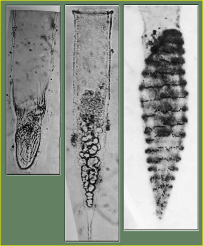 Jean Cachon photos of Xystonella Parasites: Trophont, Spores & Veriform stages (left to right).